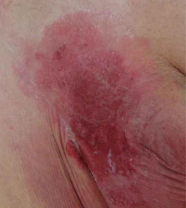 schimmelinfectie vrouw